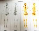 Điều trị giảm đau do ung thư tuyến giáp di căn xương tại Trung tâm Y học hạt nhân và Ung bướu bệnh viện Bạch Mai
