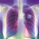 Điều trị thành công bệnh nhân ung thư phổi di căn hạch trung thất tại Trung tâm Y học hạt nhân và Ung bướu
