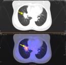 Bệnh nhân mắc ung thư phổi không tế bào nhỏ có đột biến EGFR dương tính di căn xương đa ổ đã được điều trị ổn định tại Bệnh viện Bạch Mai
