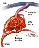 Ứng dụng phương pháp xạ phẫu bằng dao Gamma quay ( Rotating Gamma Knife) trong điều trị các dị dạng động tĩnh mạch ở sọ não.