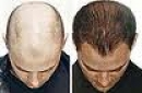 Điều trị bệnh hói đầu bằng công nghệ tế bào gốc