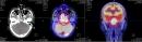 Điều trị thành công bệnh nhân ung thư vòm họng tại Trung tâm Y học hạt nhân và Ung bướu