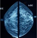 Khuyến cáo về chụp X-quang tuyến vú sàng lọc bệnh lý ung thư vú ở nữ giới