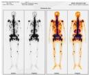 Ứng dụng kỹ thuật xạ hình trong chẩn đoán ung thư
