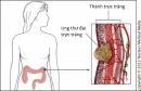 6 cách giảm nguy cơ bị ung thư trực tràng