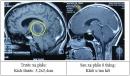 Kết quả điều trị 106 bệnh nhân u tế bào sao (Astrocystoma) bằng dao gamma quay tại bệnh viện Bạch Mai