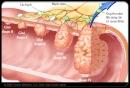 Ung thư đại trực tràng: Phát hiện sớm, dễ chữa