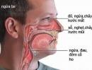 Viêm mũi dị ứng - Dùng thuốc như thế nào?