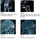 Ứng dụng phương pháp xạ phẫu bằng dao Gamma quay (Rotating Gamma Knife) trong điều trị các dị dạng động tĩnh mạch ở sọ não