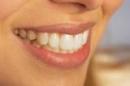 Gia tăng ung thư miệng có liên quan đến... tình dục