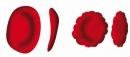 Điều trị bệnh đa hồng cầu nguyên phát (Bệnh Vaquez) bằng Phospho phóng xạ - 32P