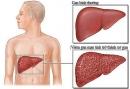 Biến chứng nguy hiểm của viêm gan B mạn tính
