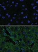Đột biến gen liên quan đến bệnh ung thư gan ở thanh thiếu niên