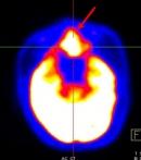 Giá trị của 18FDG-PET/CT  trong chẩn đoán u lympho ác tính