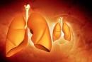 Thử nghiệm chỉ ra tương tác giữa đột biến KRAS và  Erlotinib trị liệu trong ung thư phổi không tế bào nhỏ