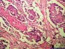 Ung thư vú - Ung thư biểu mô xâm nhập