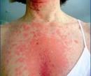 Dành cho người bệnh: các tác dụng không mong muốn có thể gặp phải khi dùng Sorafenib, Regorafenib