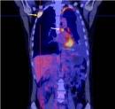 Điều trị ổn định bệnh nhân ung thư phổi không tế bào nhỏ có đột biến EGFR tại Trung tâm Y học hạt nhân và Ung bướu, Bệnh viện Bạch Mai (phần 2)