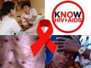 Y học hạt nhân chẩn đoán bệnh HIV /AIDS và các bệnh nhân bị ức chế miễn dịch khác