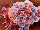 Dùng thuốc hóa chất trong điều trị ung thư như thế nào?