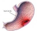Yếu tố nguy cơ của ung thư dạ dày.