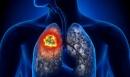 Điểu trị thành công bệnh nhân ung thư phổi giai đoạn muộn tại Trung tâm Y học hạt nhân và Ung bướu – Bệnh viện Bạch Mai