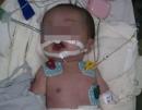Bé sơ sinh mang khối u gan khổng lồ