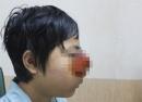 Cậu bé dân tộc có khối u lạ bằng nắm tay trên mặt