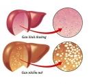5 dấu hiệu tố bạn bị gan nhiễm mỡ